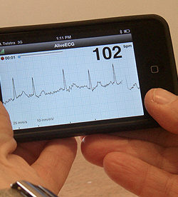 University of Sydney Researchers build iPhone App that detects heart conditions that lead to stroke