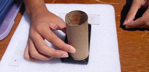 Athelas Low Cost Malaria Diagnosis using a Smart Phone